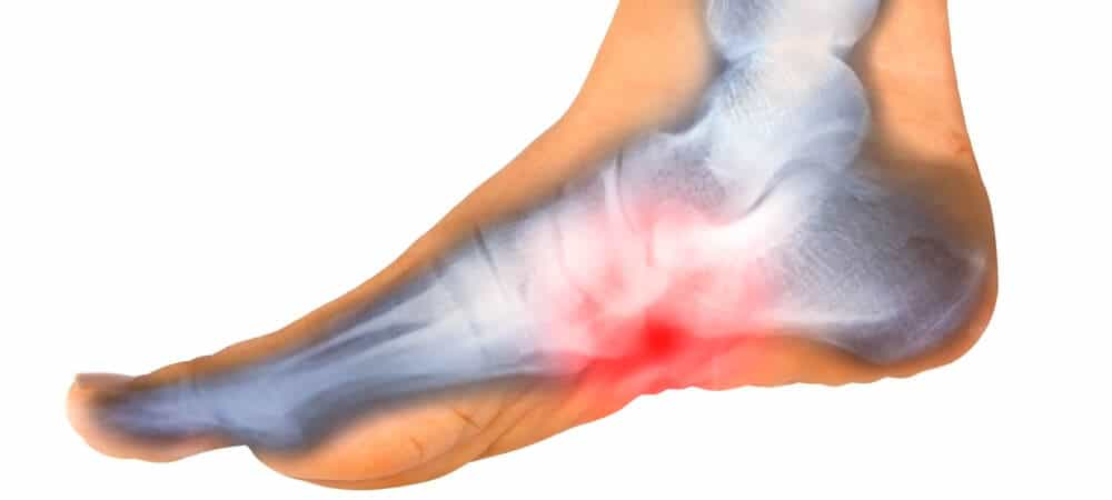 Plantar Fascitis Causes and treatments by the Physio Clinic Naas & Newbridge. Chartered Physio & Chiropractor Naas & Newbridge