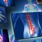 Chronic Pain & Numbness Management by Naas Chiropractor at the Physio Clinic