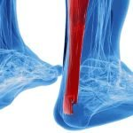 Causes of Achilles tendon pain with treatment at Naas Physio Clinic
