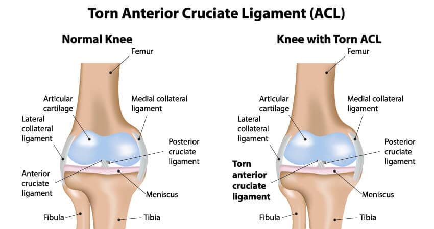 Naas Physio Clinic | ACL Injuries