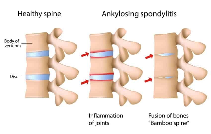 Causes of Ankylosing Spondylitis with treatment from the Physio Clinic Naas & Newbrdge.
