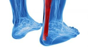 What is the best treatment for achilles tendon pain?