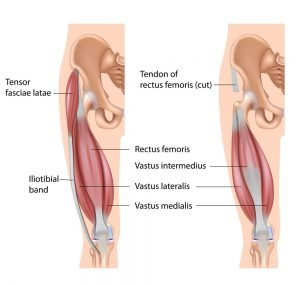 Avulsion Fracture treatment